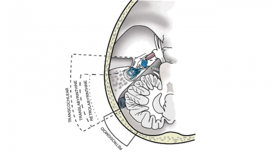 Lateral skull base approaches